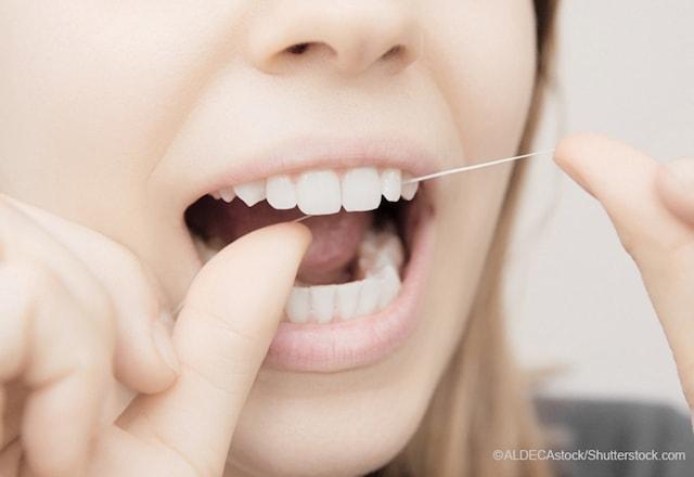 女性が歯の間にデンタルフロスを通す様子